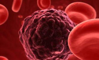 Σπουδαία ανακάλυψη από Έλληνα γιατρό για τον καρκίνo