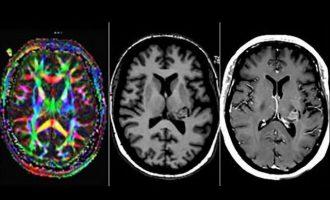 Γυναίκα που «της μίλαγε ο Θεός» αποδείχτηκε ότι είχε όγκο στον εγκέφαλο