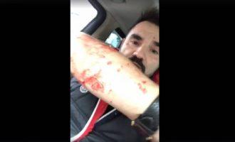 Προσπάθησαν να σκοτώσουν με σφυριά τον δημοσιογράφο Νάσο Γουμενίδη (βίντεο)