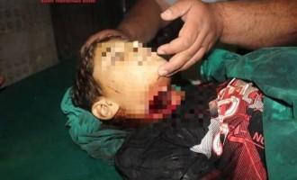 Η τουρκική αστυνομία σκότωσε 12χρονο Κούρδο – φωτογραφίες
