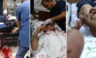 6 Κούρδοι διαδηλωτές νεκροί μέχρι στιγμής στην Τουρκία