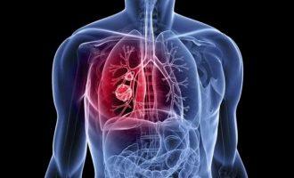Καταγγελίες καρκινοπαθών για παράνομες χρεώσεις προκειμένου να κάνουν ακτινοθεραπεία