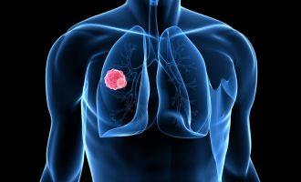 Ποια τροφή μπορεί να εμποδίσει τη μετάσταση του καρκίνου του πνεύμονα