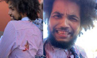 Ξυλοκοπήθηκε Τσέχος βουλευτής αιθιοπικής καταγωγής λόγω… χρώματος