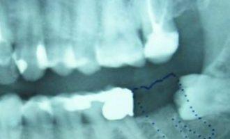 Απίστευτο: Δόντι μεγάλωνε στα γεννητικά όργανα 13χρονου