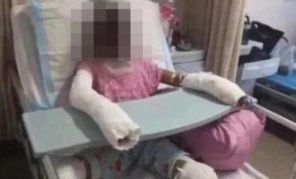 14χρονη πέθανε από εγκαύματα όταν πήγε να αντιγράψει συνταγή από Youtube
