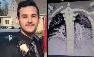 Το υγρό για ηλεκτρονικό τσιγάρο έπηξε στους πνεύμονες 19χρονου στις ΗΠΑ