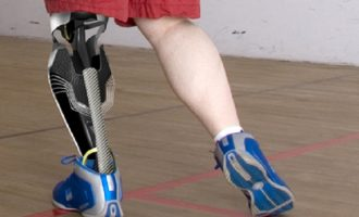 Ακρωτηριασμένοι απέκτησαν ξανά αισθήσεις στο προσθετικό πόδι τους