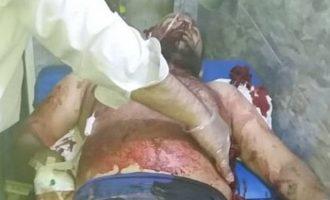 Νεκροί και τραυματίες χριστιανοί από τις τουρκικές βόμβες στο Καμισλί (φωτο+βίντεο)
