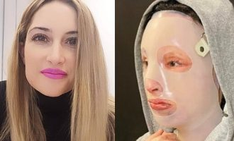 Επίθεση με βιτριόλι: «Το ένα αφτί της Ιωάννας έχει εξαφανιστεί»