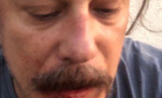 Αυτοεξόριστος Τούρκος δημοσιογράφος δέχθηκε άγρια επίθεση μέσα στο σπίτι του στο Βερολίνο